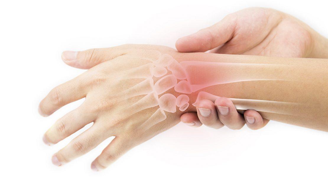 5 Surprising Facts About Rheumatoid Arthritis